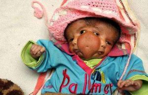 Indian baby born with two faces